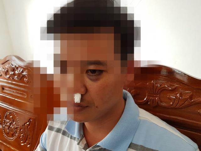 Thầy giáo Bảo bị đánh gãy xương mũi