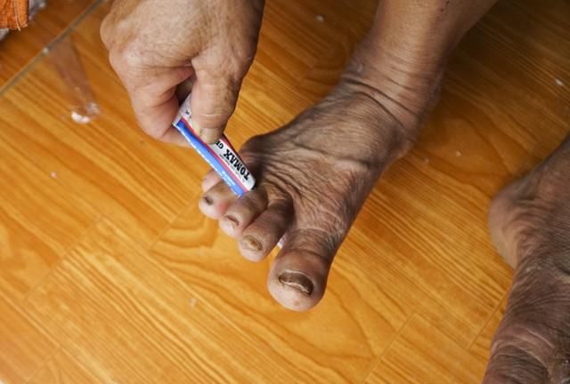 Cán bộ y tế tại đây cho biết, người dân ở các vùng ngập nặng chủ yếu mắc các bệnh như: đau mắt đỏ, bệnh ngoài da và bệnh tiêu chảy.