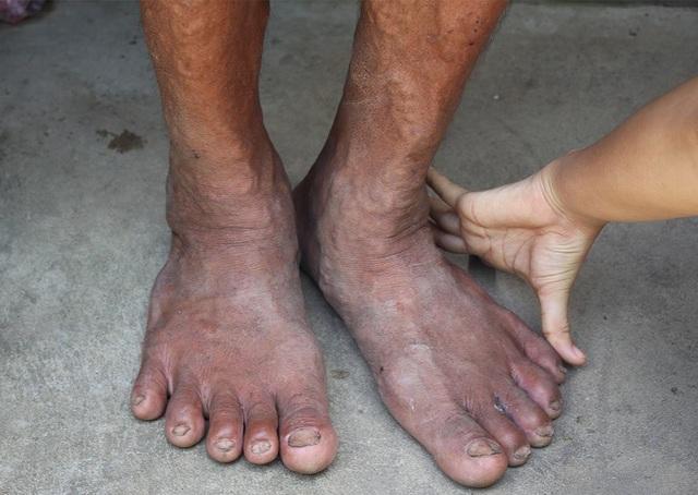 Đôi bàn tay và chân khổng lồ của ông Y