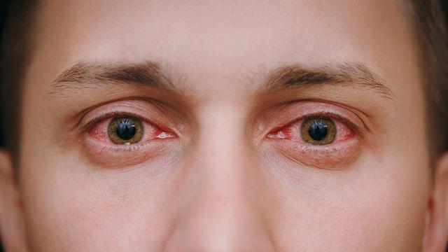 Làm gì khi có hiện tượng đỏ mắt? - 1