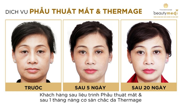 Hình ảnh khách hàng trước và sau khi thực hiện phẫu thuật trẻ hóa đôi mắt tại Viện chăm sóc sức khỏe và sắc đẹp Thanh Hằng Beauty Medi