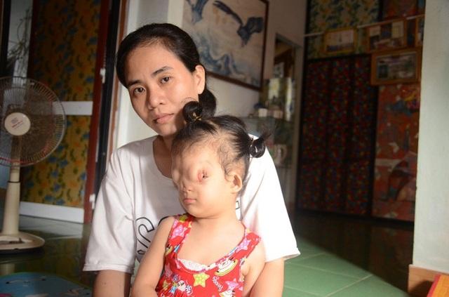 Cô bé bất hạnh Tôn Nữ Hoàng Dung, ở TDP Diêm Tân, phường Đức Ninh Đông, TP Đồng Hới, tỉnh Quảng Bình