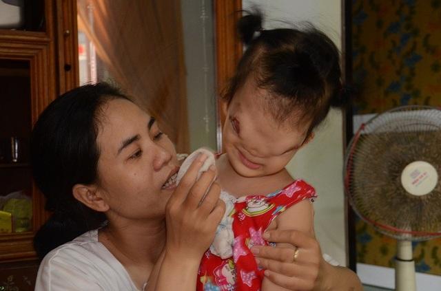 Vợ chồng chị Linh vẫn luôn khao khát chữa trị cho đứa con bé bỏng, thế nhưng chi phí quá lớn