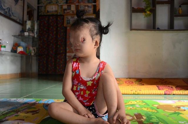 Xót xa trước số phận bất hạnh của cô bé 3 tuổi có khuôn mặt dị dạng - 3