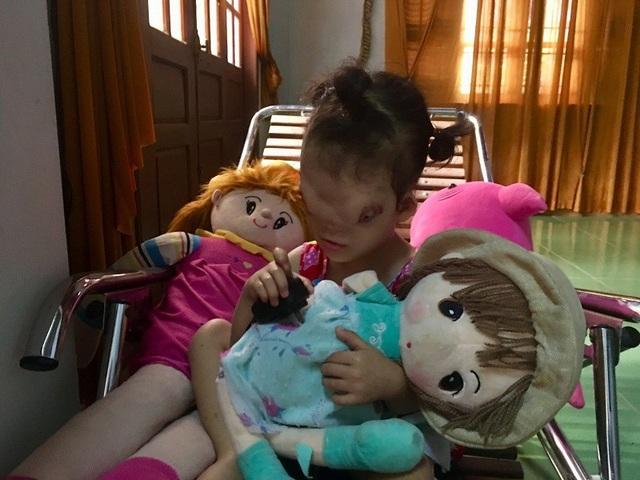 Bị dị tật khuôn mặt nên Hoàng Dung không thể đến trường, cũng không có bạn chơi cùng vì đứa trẻ nào thấy cô bé cũng bỏ chạy vì sợ