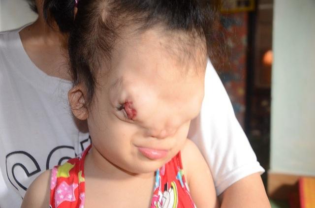 Khuôn mặt Hoàng Dung bị biến dạng hoàn toàn khi không có sống mũi, trán méo xệch, còn mắt thì toét, lồi hẳn ra bên ngoài. Khoảng cách của đôi mắt cũng xa nhau chứ không như những đứa trẻ bình thường khác.