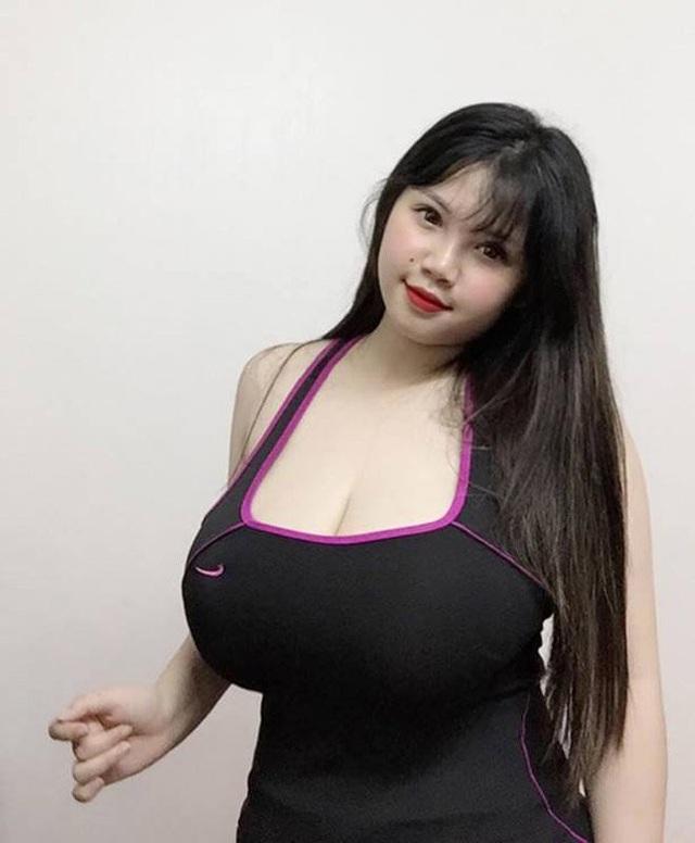 Hình ảnh của Trang trước khi thực hiện phẫu thuật thu nhỏ ngực