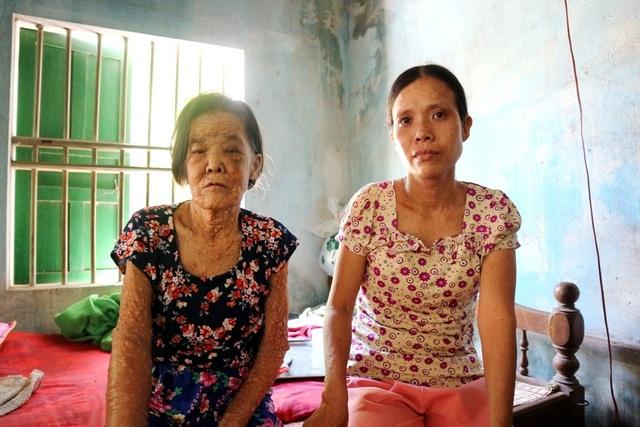 Cả hai mẹ con chị Nga đều mang bệnh hiểm nghèo trong khi hoàn cảnh quá khó khăn