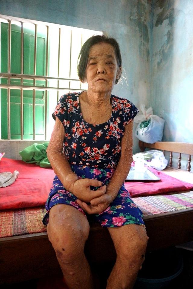 Bà Quân mắc bệnh ung thư vú, ngoài ra còn nhiều bệnh khác như bướu giáp đa nhân, viêm gan…