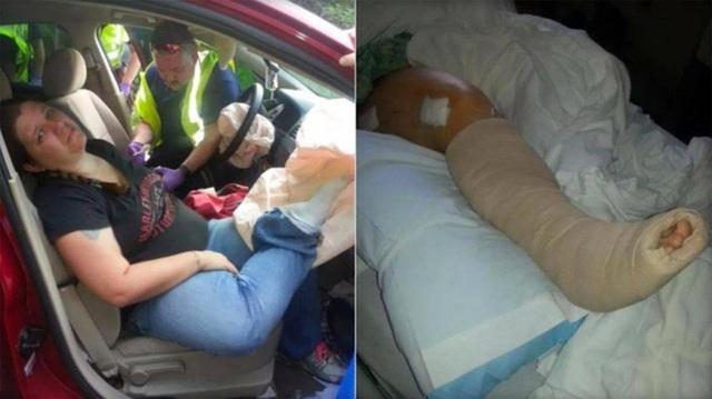 Audra Tatum đang được sơ cứu trong xe (trái) và chân phải bó bột khi tới bệnh viện sau đó (phải)