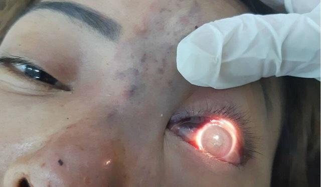 Mắt trái bệnh nhân bị chất làm đầy gây tắc mạch, mất thị lực