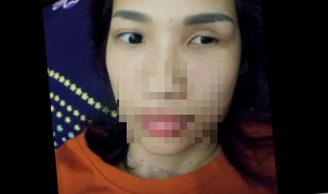 Mắt trái của chị L. không còn nhìn thấy và bị teo lại. Ảnh: HL