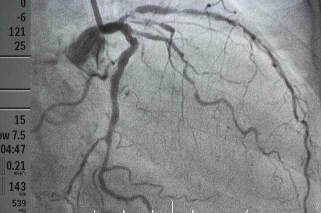7 dấu hiệu thầm lặng của tắc động mạch - 1