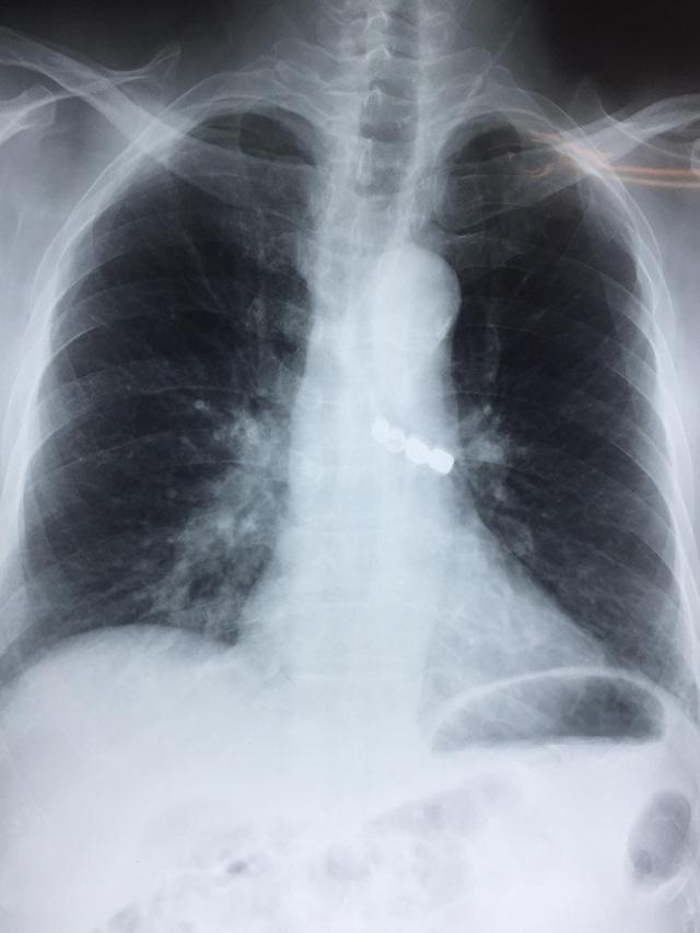 X-quang phổi cho thấy rõ cầu răng giả (Ảnh: BS cung cấp)