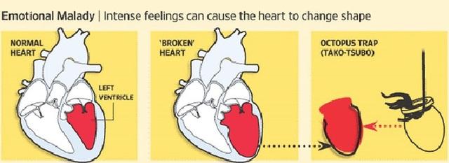 Nguy hiểm từ hội chứng 'trái tim tan vỡ' - 2