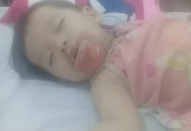 Vùng miệng, cằm của bé bị sưng phồng thời điểm được chuyển đến bệnh viện