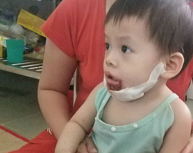 Bé Ngân bị bỏng vùng miệng, cằm sau gần 2 tuần điều trị vết thương đang bình phục