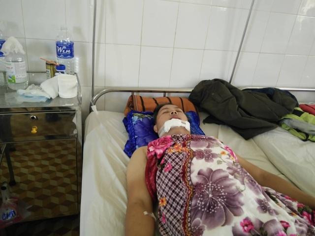 Anh Trung bị đối tượng trộm xe máy tông chấn thương vùng mặt