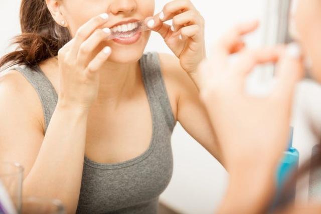 Những điều bạn nên biết về tẩy trắng răng - 1