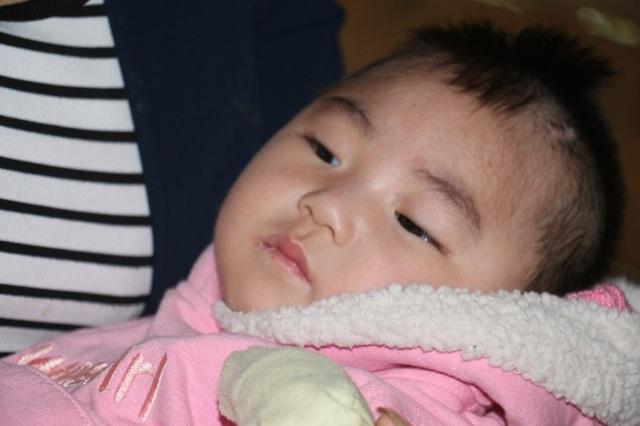 Thương bé 1 tuổi mang bệnh não úng thủy - 6