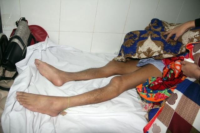 Chấn thương nặng ở chân phải chưa được phẫu thuật, khiến chân thầy Dũng cứ teo tóp dần.