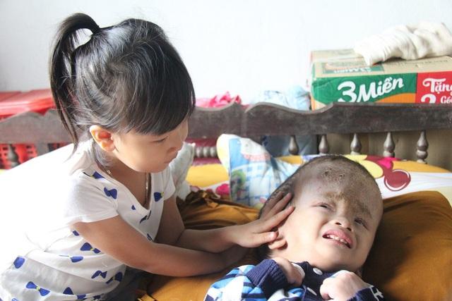 """""""Em ngoan nhá, bao giờ em khỏi bệnh, chị dẫn em sang nhà bà ngoại chơi"""" của My khiến bà và mẹ bật khóc"""