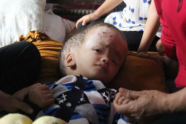 Ánh mắt tội nghiệp của đứa trẻ mắc bệnh hiểm nghèo