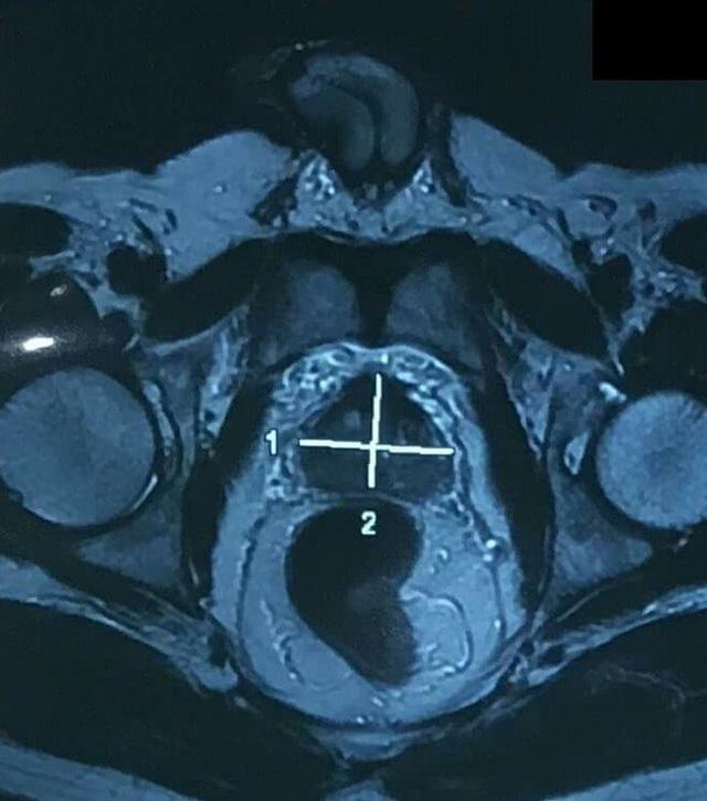 Khối ung thư tuyến tiền liệt trong cơ thể người bệnh qua chẩn đoán hình ảnh