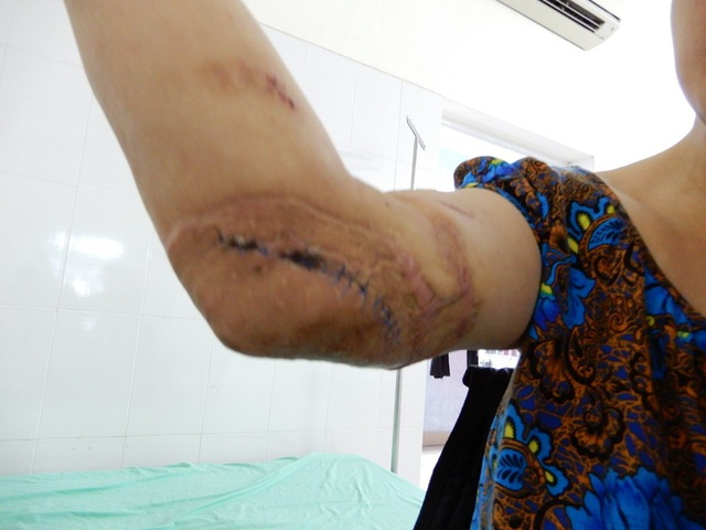 Thắt nghẹn trước hoàn cảnh của người đàn bà bị máy dán gỗ cuốn dập nát tay - 2