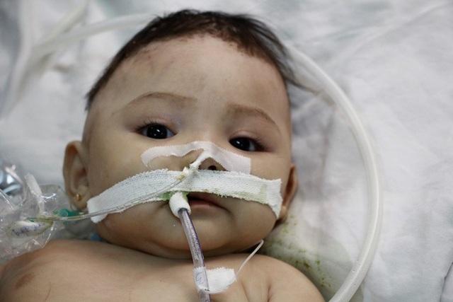 Bé HSuha Niê khi đang điều trị tại Bệnh viện Đa khoa tỉnh Đắk Lắk