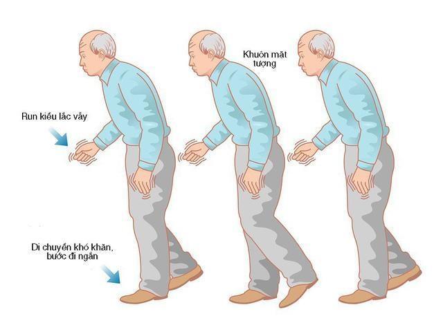 Khởi phát bệnh Parkinson ở người trẻ có gì khác với người cao tuổi? - 3