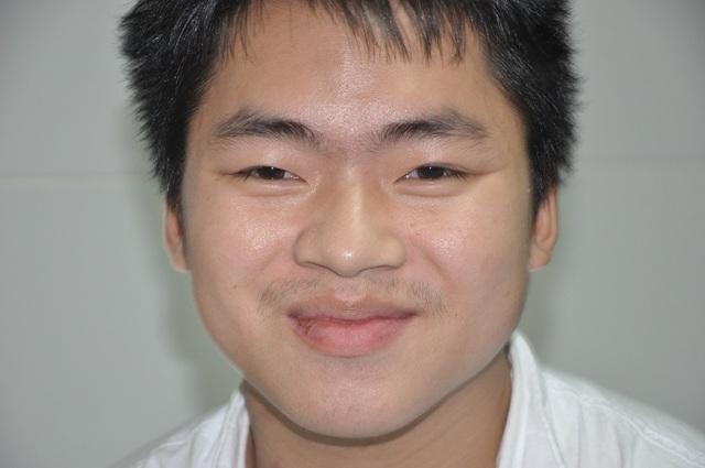 Nụ cười của chàng trai trẻ dân tộc Dao được cứu sống nhờ tấm lòng bạn đọc báo Dân trí - 4
