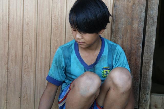 Bố lên cơn động kinh đánh chết mẹ, cậu bé người Mông mịt mù đường đến trường - 4