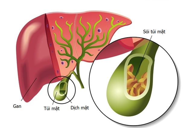 Những điều cần lưu ý trước và sau cắt túi mật nội soi - 2