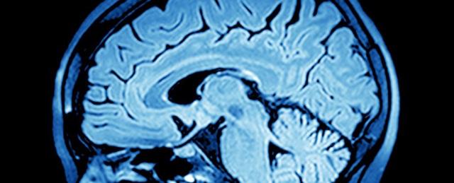 Đã có cách chuyển đổi tín hiệu não người thành lời nói - 1