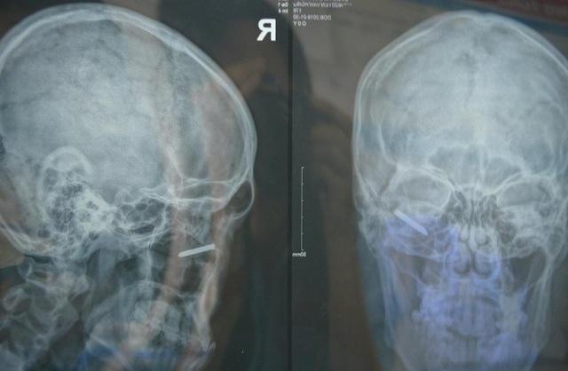Qua kết quả X quang cho thấy nam thanh niên bị đinh cắm sâu vào hốc mắt