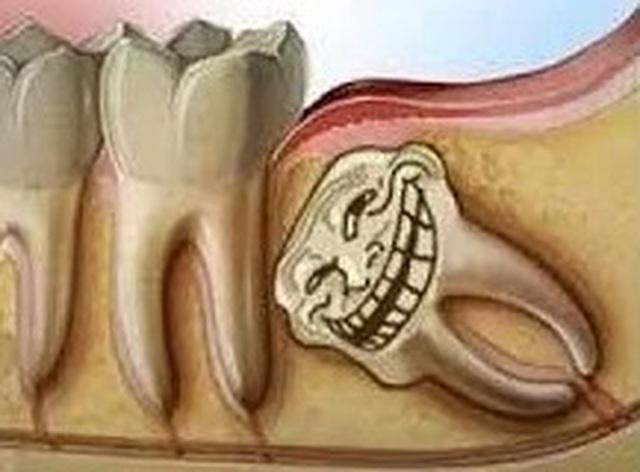 Răng khôn, vì sao phải nhổ bỏ? | Báo Dân trí