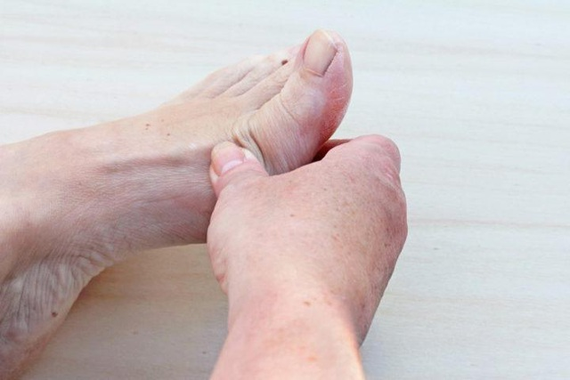 Bệnh gút thường đau ở đâu? Biểu hiện như thế nào? - 4