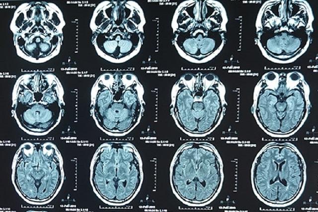 MRI truoc.jpg