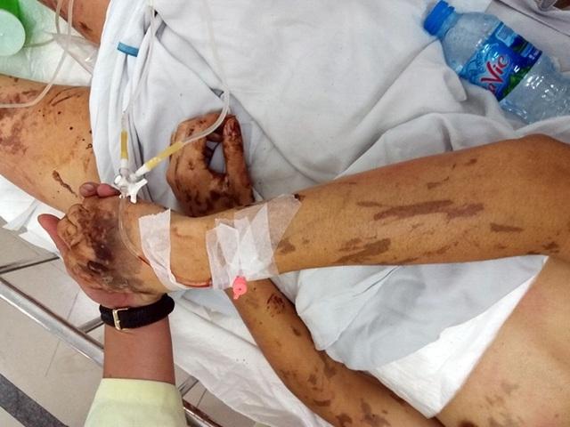 Nhiều tình tiết mới trong vụ tạt axit, cắt gân chân Việt kiều Canada - 1