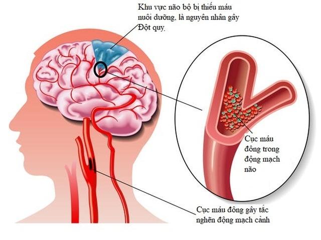 Những cách giúp người bệnh rung nhĩ sống lâu, sống khỏe hơn - 3