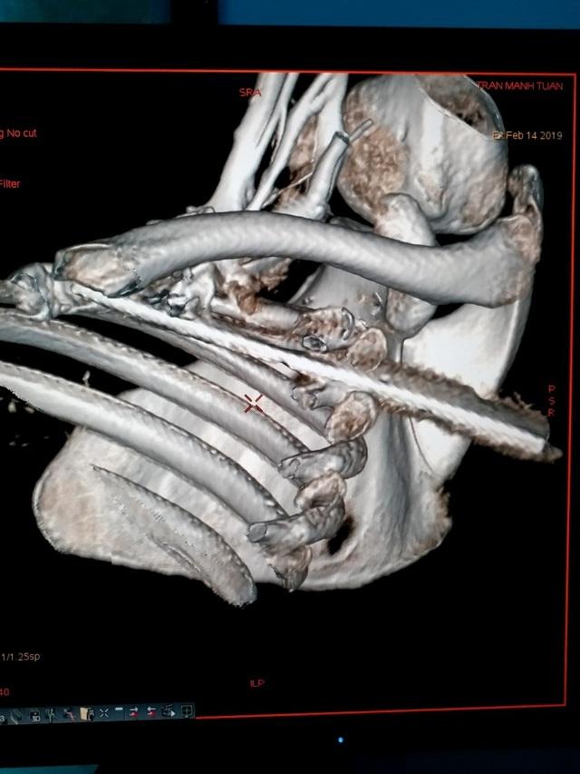 Bệnh nhân bị đâm xuyên ngực, phổi