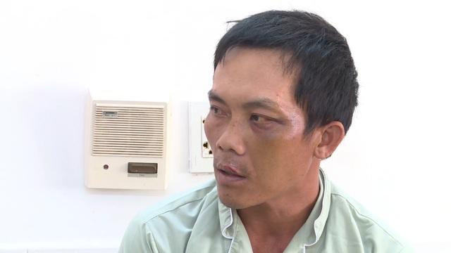 Yêu cầu xử nghiêm sếp Dự án Điện mặt trời ra lệnh đánh, phơi nắng dân - 2