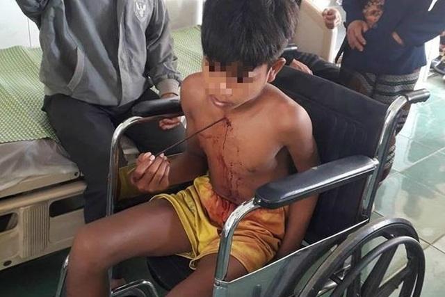 Trượt chân, một thiếu niên bị mũi tên sắt đâm sâu vào ngực - 1