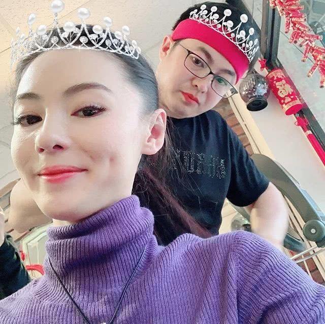 Vì gương mặt căng bóng, Trương Bá Chi bị nghi ngờ dao kéo thẩm mỹ - 2