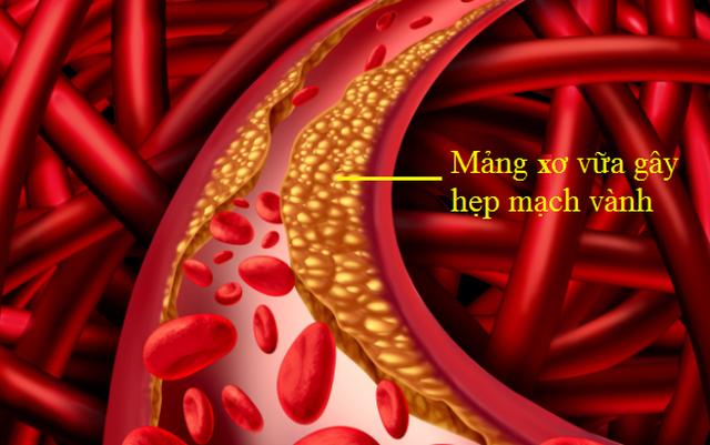 Sống khỏe với tắc hẹp mạch vành không khó, nếu bạn hiểu đúng bệnh - 1
