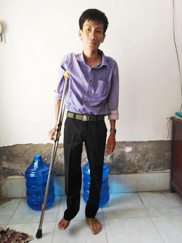 Xương chân phải bị mục chỉ còn mạch máu, nam thanh niên cần phẫu thuật cấp - 1
