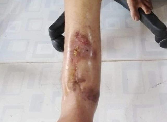 Xương chân phải bị mục chỉ còn mạch máu, nam thanh niên cần phẫu thuật cấp - 3