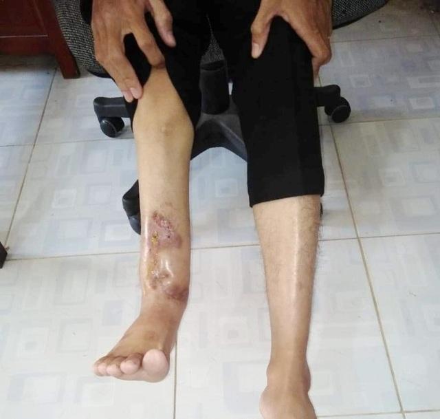 Xương chân phải bị mục chỉ còn mạch máu, nam thanh niên cần phẫu thuật cấp - 2