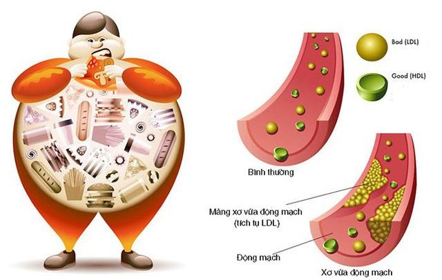 Giảm mỡ máu hiệu quả với dược liệu thiên nhiên - 3